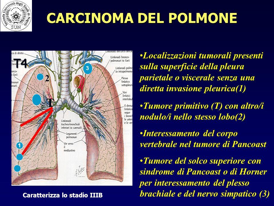 CARCINOMA DEL POLMONE T4 T
