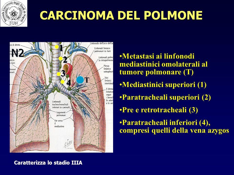 CARCINOMA DEL POLMONE N2 1 2 3 4