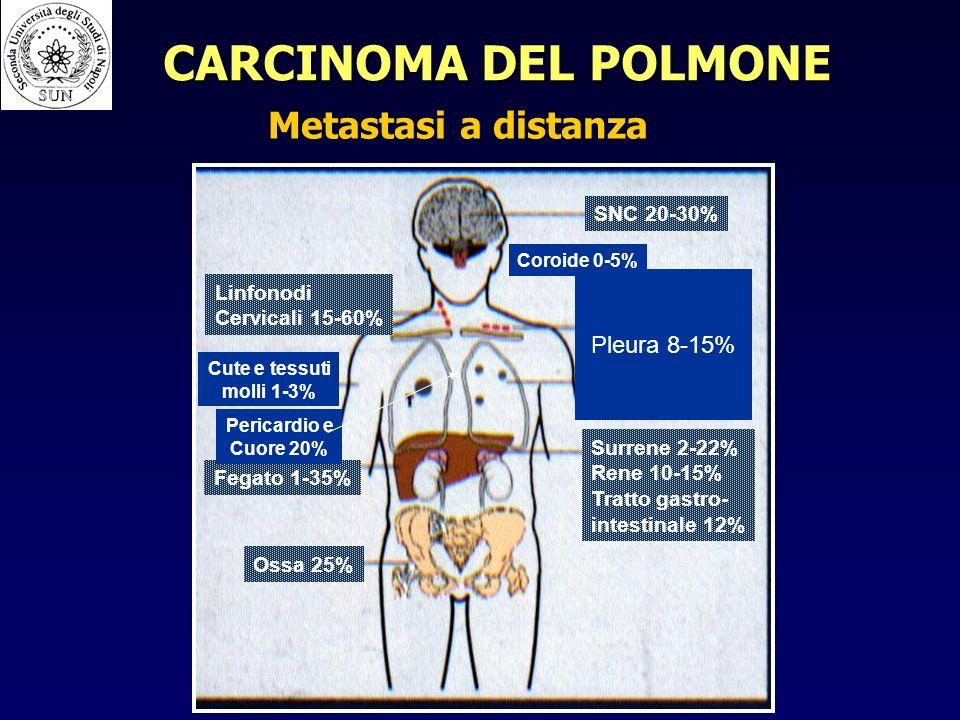 CARCINOMA DEL POLMONE Metastasi a distanza Pleura 8-15% SNC 20-30%