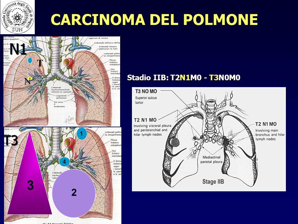 CARCINOMA DEL POLMONE T N N1 Stadio IIB: T2N1M0 - T3N0M0 T3 1 2 3 4
