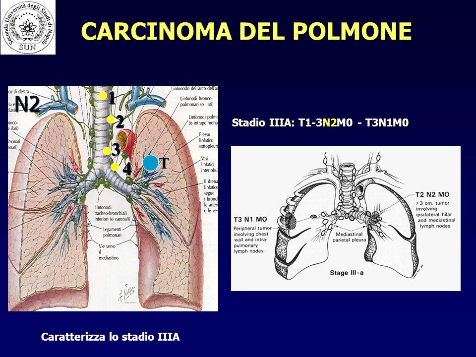 CARCINOMA DEL POLMONE N2 1 2 3 4 T Stadio IIIA: T1-3N2M0 - T3N1M0