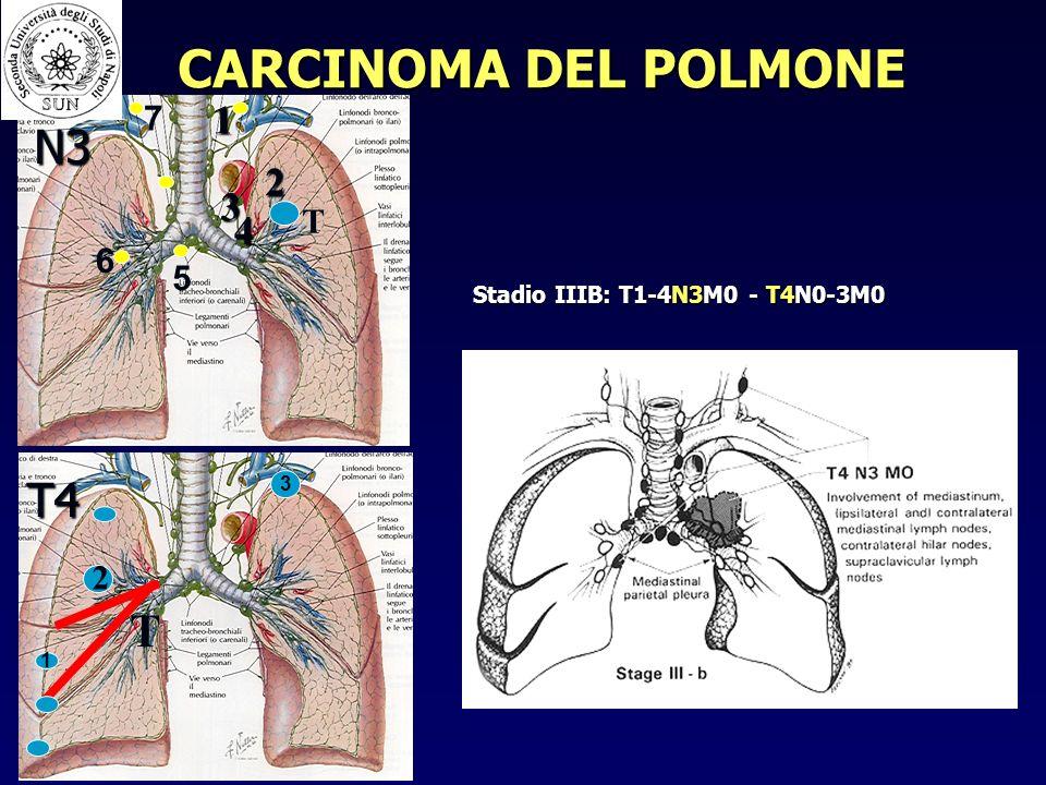 CARCINOMA DEL POLMONE N3 T4 T 1 2 3 4 7 T 6 5 2