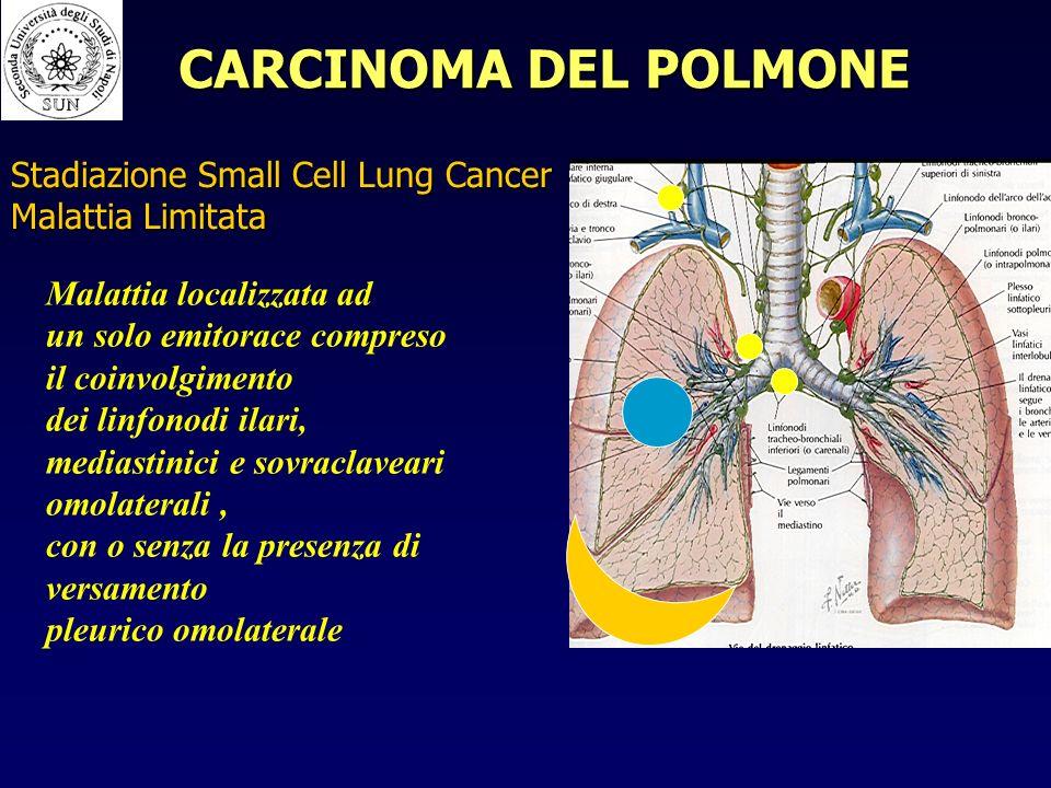 Stadiazione Small Cell Lung Cancer Malattia Limitata