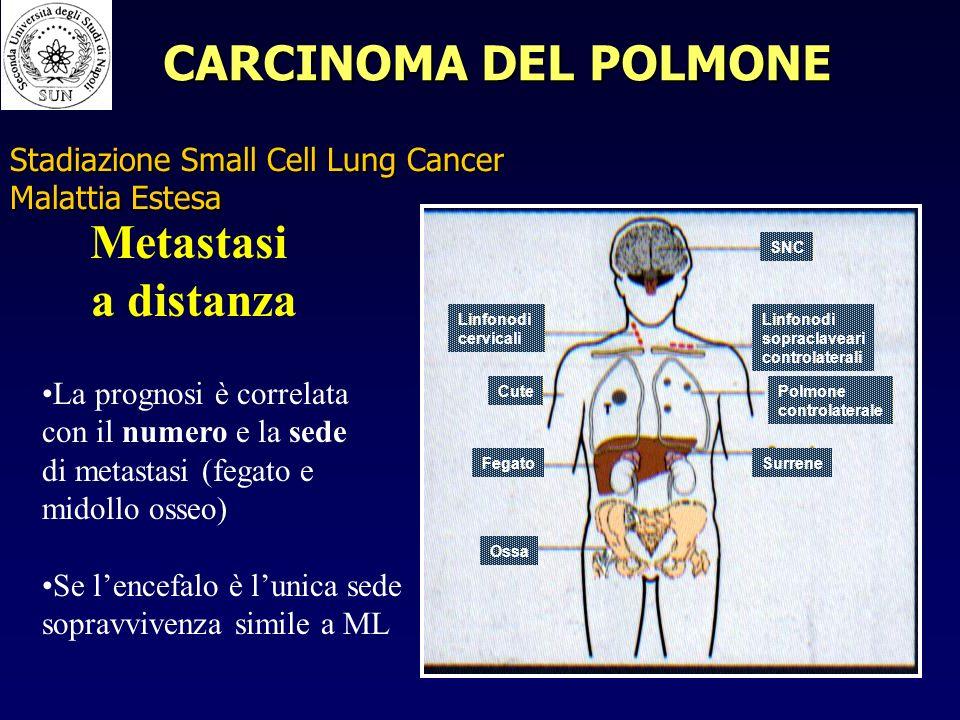 Stadiazione Small Cell Lung Cancer Malattia Estesa