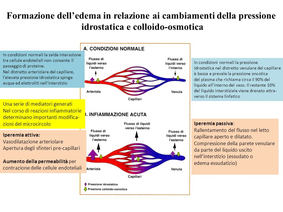 Formazione dell'edema in relazione ai cambiamenti della pressione
