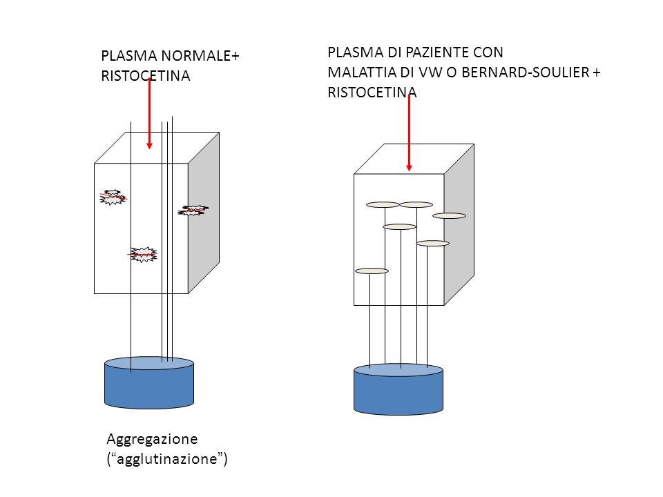 PLASMA NORMALE+ RISTOCETINA. Aggregazione. ( agglutinazione ) PLASMA DI PAZIENTE CON. MALATTIA DI VW O BERNARD-SOULIER +