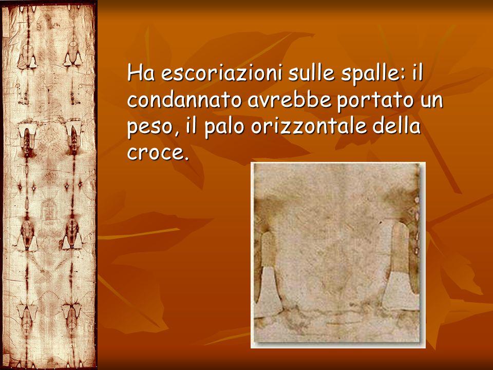 Ha escoriazioni sulle spalle: il condannato avrebbe portato un peso, il palo orizzontale della croce.