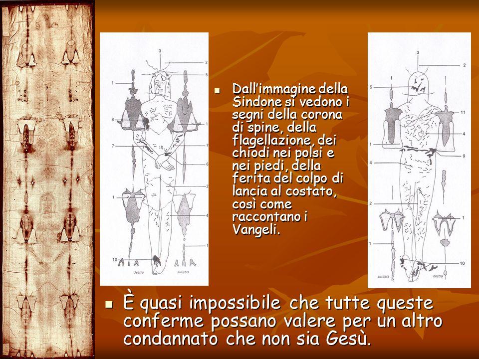 Dall'immagine della Sindone si vedono i segni della corona di spine, della flagellazione, dei chiodi nei polsi e nei piedi, della ferita del colpo di lancia al costato, così come raccontano i Vangeli.
