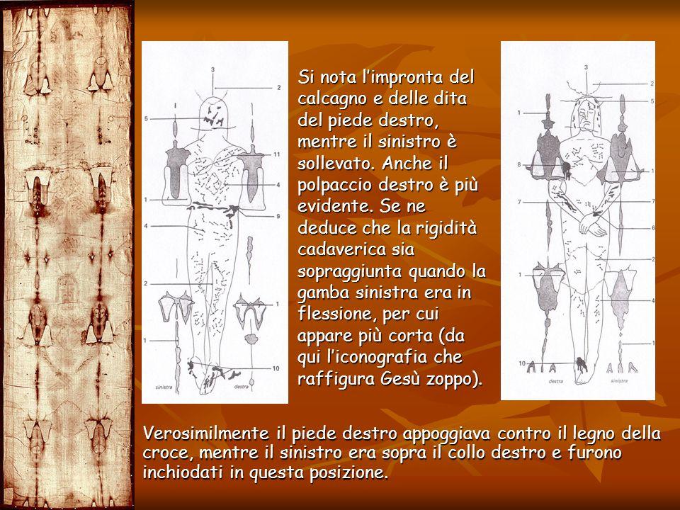 Si nota l'impronta del calcagno e delle dita del piede destro, mentre il sinistro è sollevato. Anche il polpaccio destro è più evidente. Se ne deduce che la rigidità cadaverica sia sopraggiunta quando la gamba sinistra era in flessione, per cui appare più corta (da qui l'iconografia che raffigura Gesù zoppo).