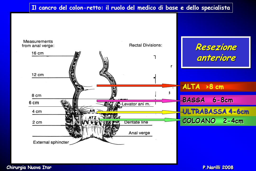 Resezione anteriore ALTA >8 cm BASSA 6-8cm ULTRABASSA 4-6cm