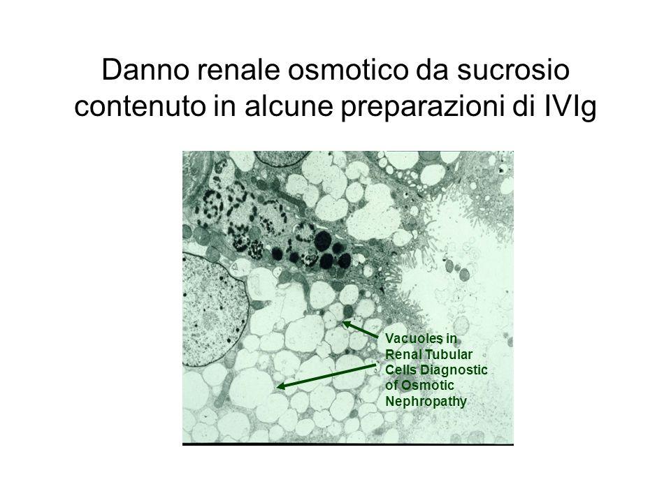Danno renale osmotico da sucrosio contenuto in alcune preparazioni di IVIg
