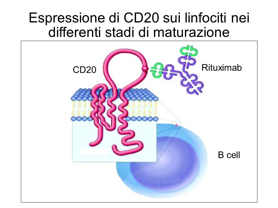 Espressione di CD20 sui linfociti nei differenti stadi di maturazione