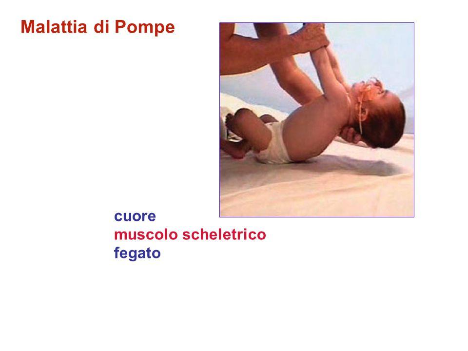 Malattia di Pompe Frequenza: 1: 40.000