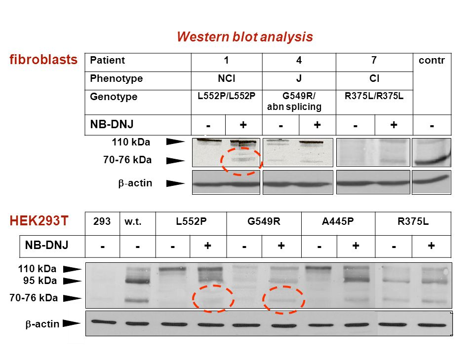 Western blot analysis - + - +