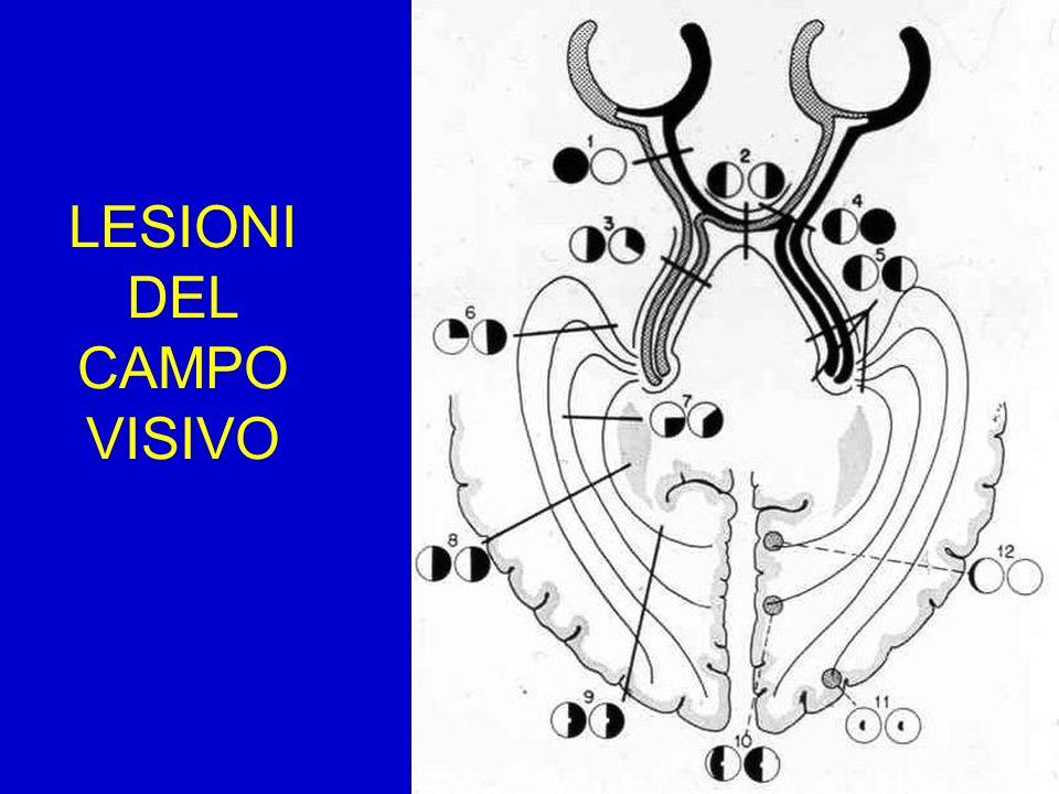 LESIONI DEL CAMPO VISIVO
