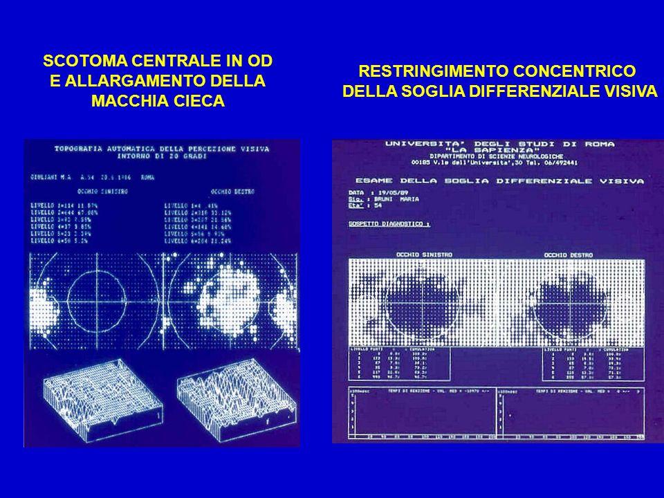 RESTRINGIMENTO CONCENTRICO DELLA SOGLIA DIFFERENZIALE VISIVA