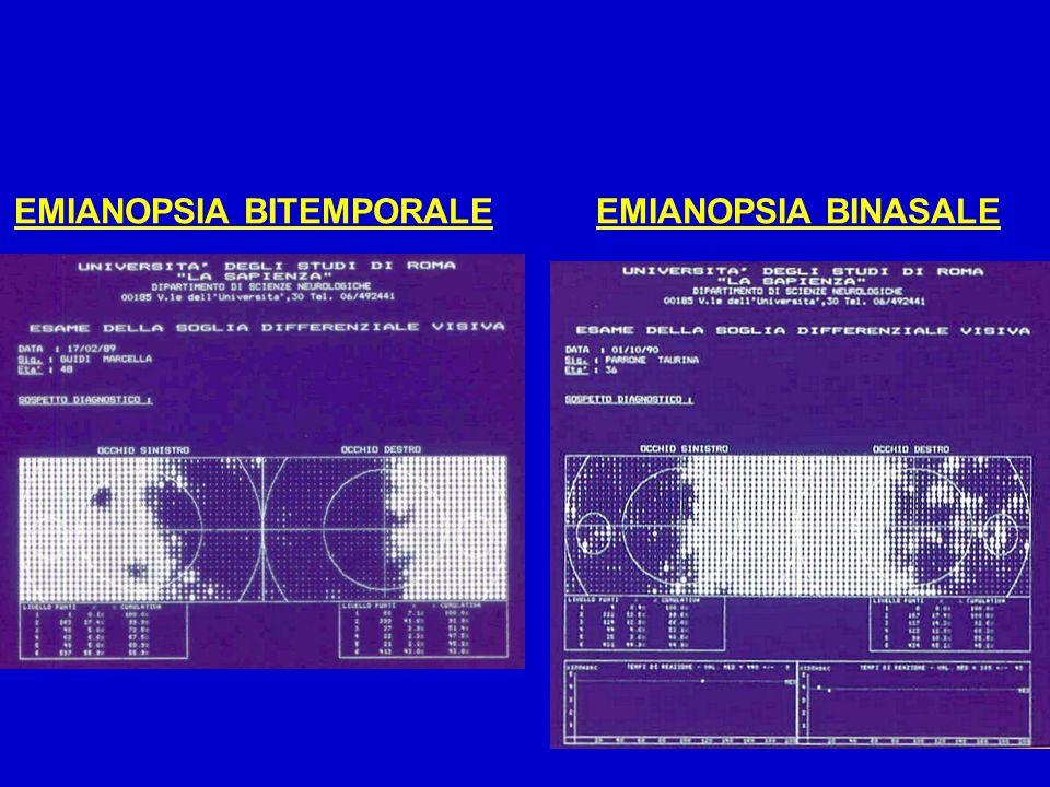 EMIANOPSIA BITEMPORALE
