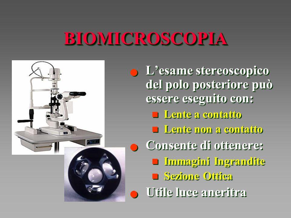 BIOMICROSCOPIA L'esame stereoscopico del polo posteriore può essere eseguito con: Lente a contatto.
