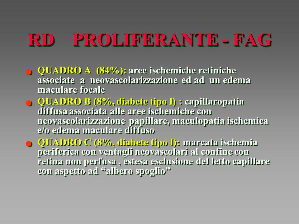 RD PROLIFERANTE - FAG QUADRO A (84%): aree ischemiche retiniche associate a neovascolarizzazione ed ad un edema maculare focale.