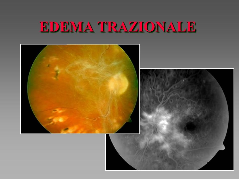 EDEMA TRAZIONALE