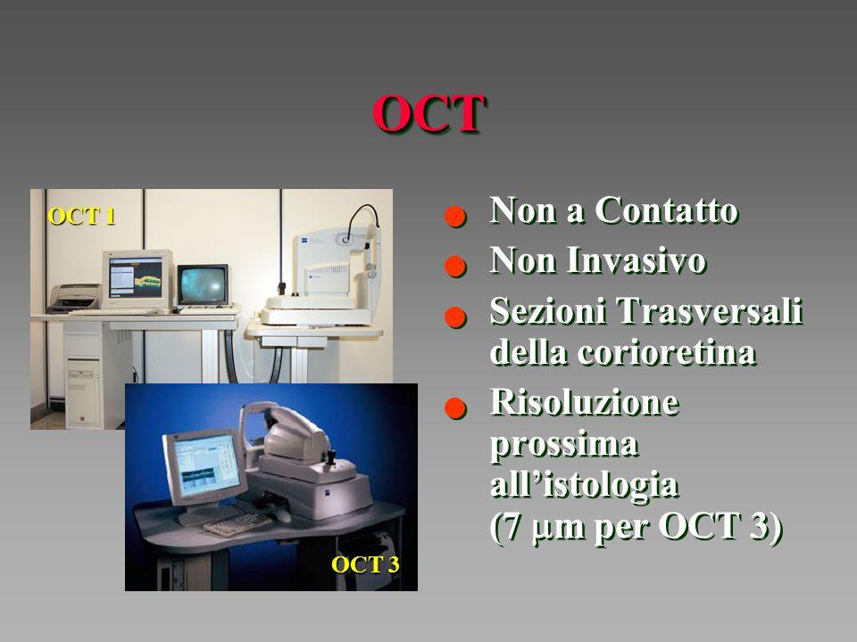 OCT Non a Contatto Non Invasivo Sezioni Trasversali della corioretina