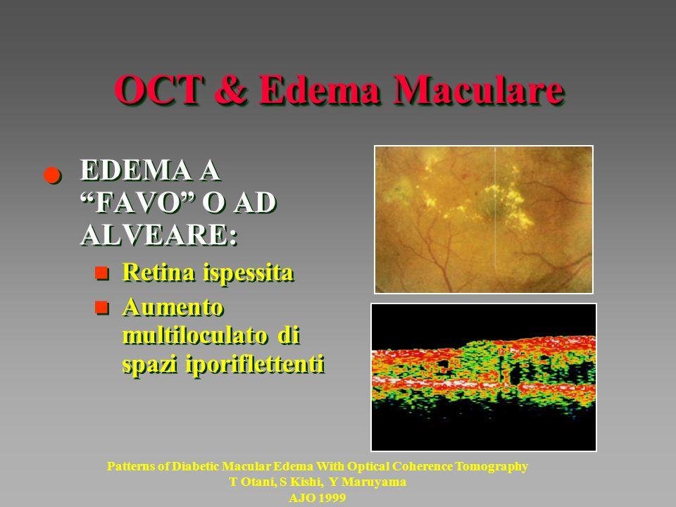 OCT & Edema Maculare EDEMA A FAVO O AD ALVEARE: Retina ispessita