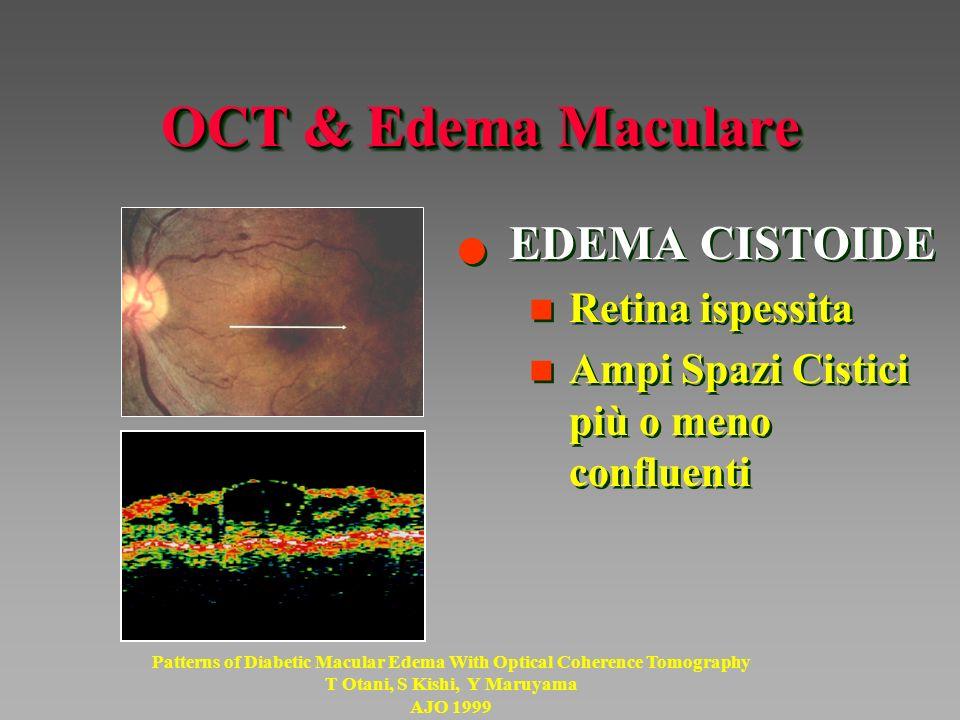OCT & Edema Maculare EDEMA CISTOIDE Retina ispessita
