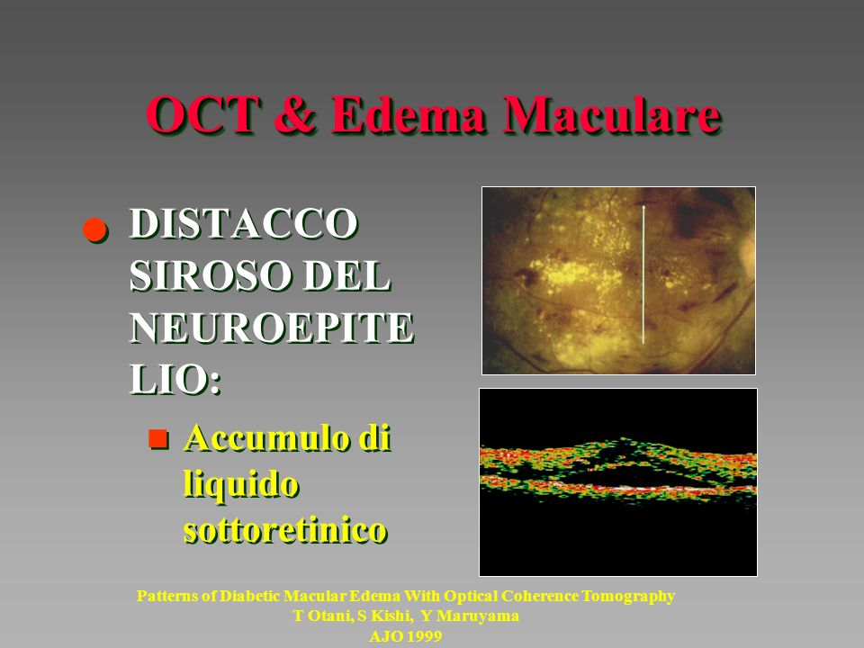 OCT & Edema Maculare DISTACCO SIROSO DEL NEUROEPITELIO: