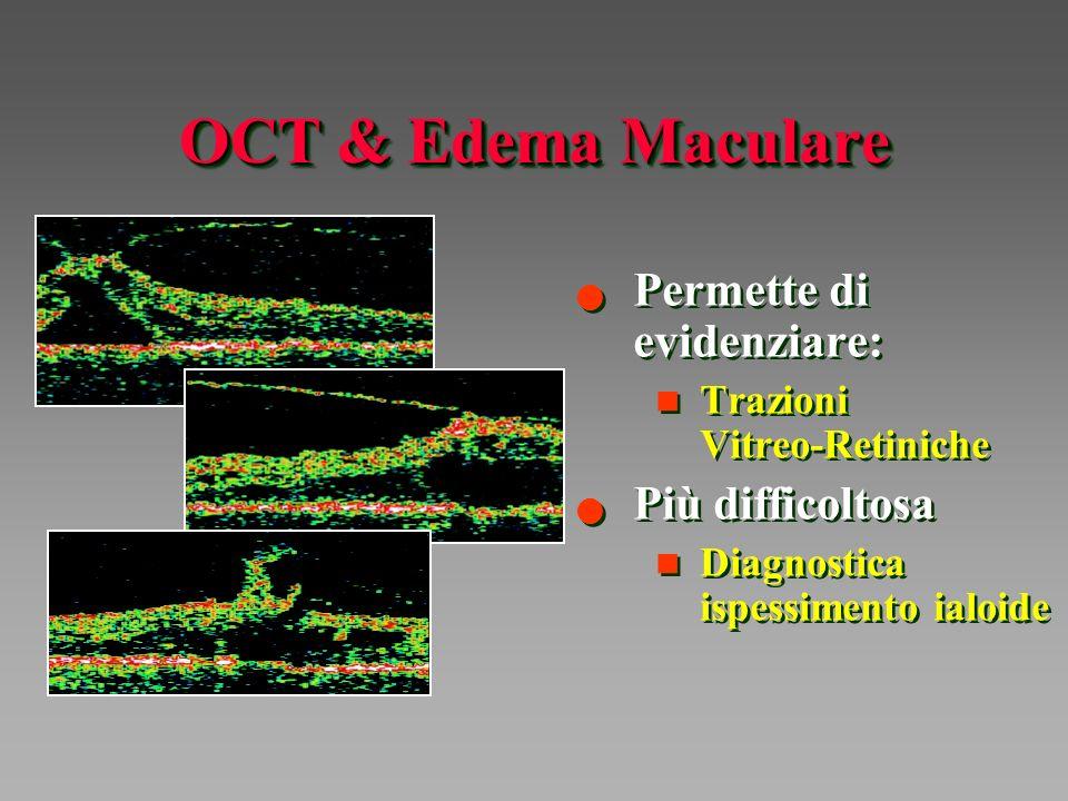 OCT & Edema Maculare Permette di evidenziare: Più difficoltosa