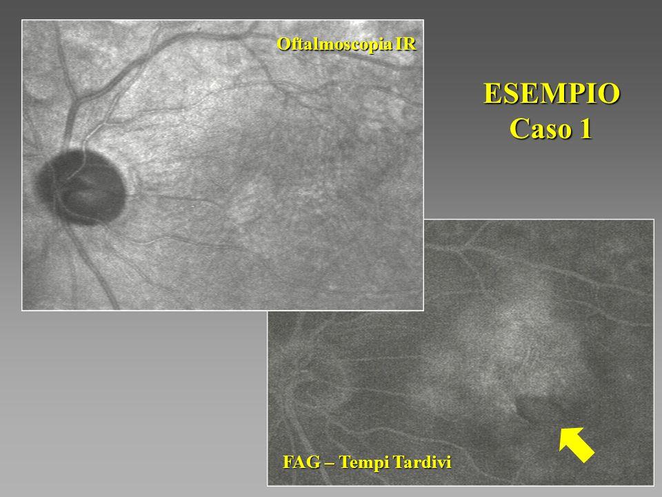 Oftalmoscopia IR ESEMPIO Caso 1 FAG – Tempi Tardivi