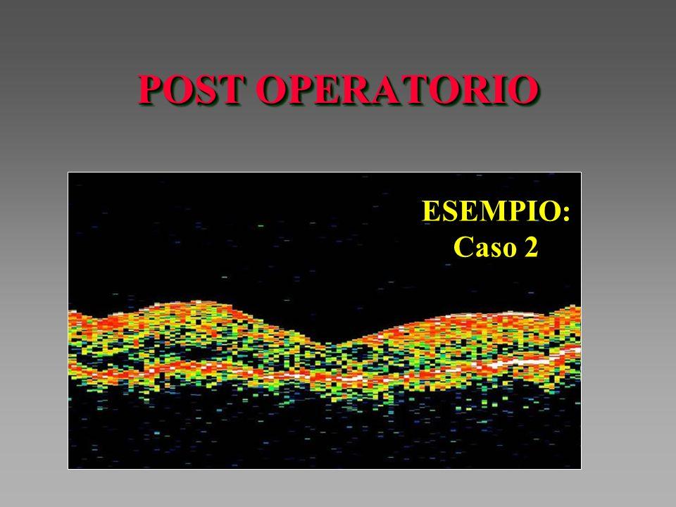 POST OPERATORIO ESEMPIO: Caso 2