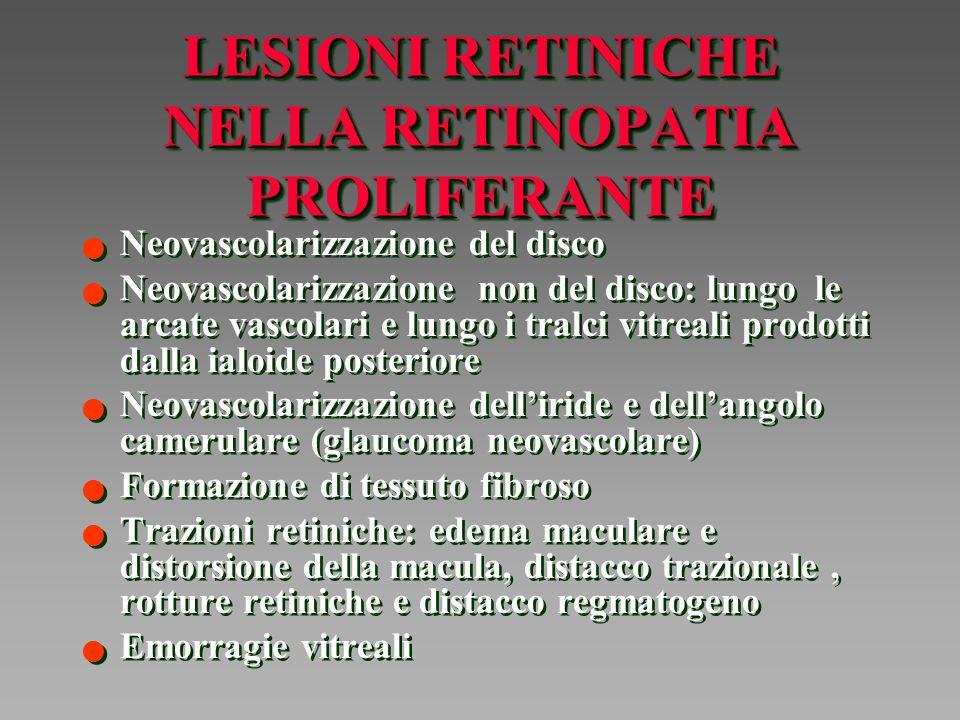 LESIONI RETINICHE NELLA RETINOPATIA PROLIFERANTE