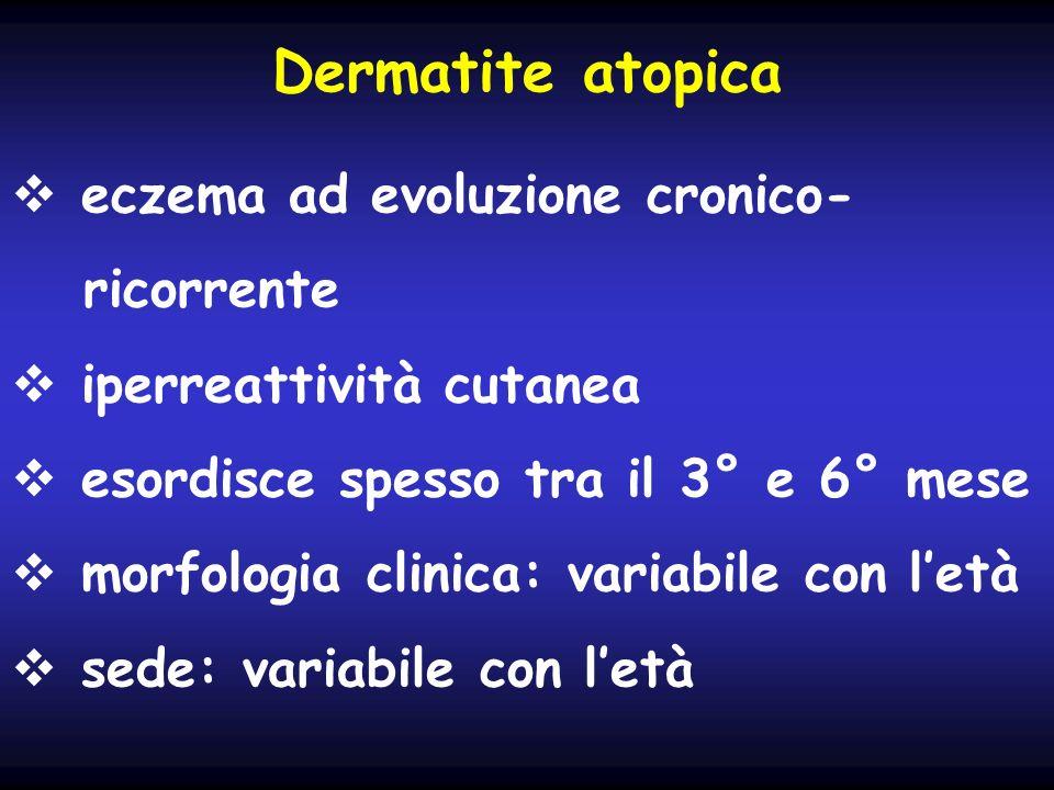Dermatite atopica eczema ad evoluzione cronico- ricorrente
