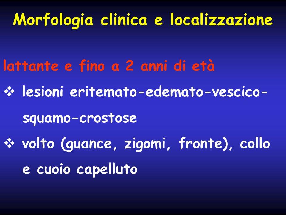 Morfologia clinica e localizzazione