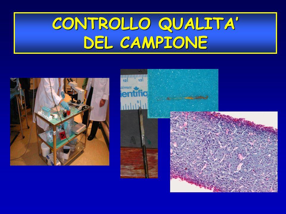 CONTROLLO QUALITA' DEL CAMPIONE