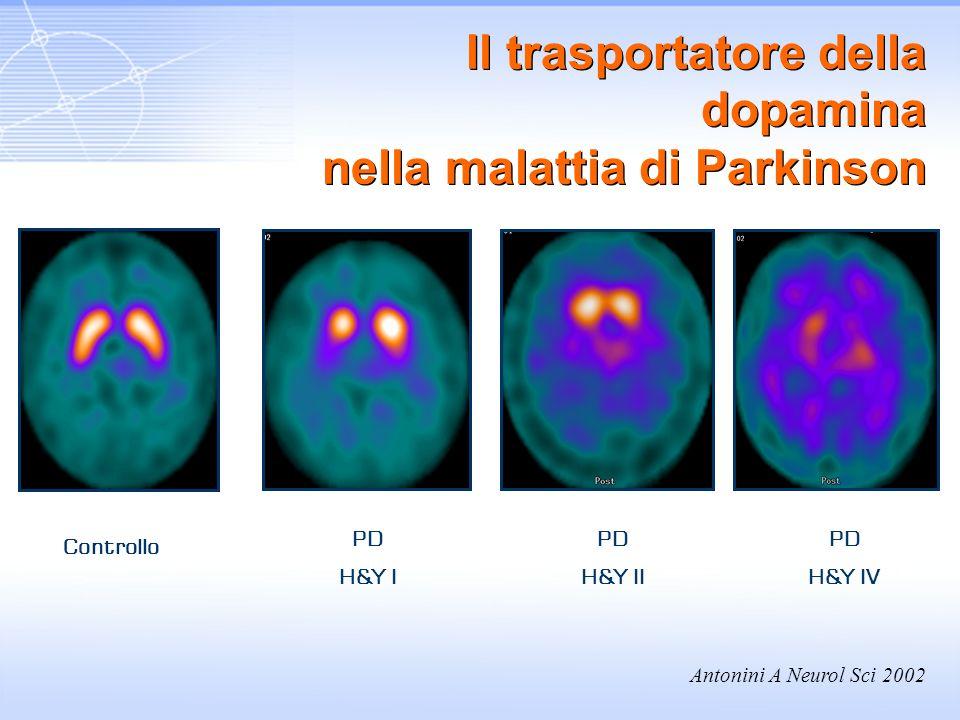 Il trasportatore della dopamina nella malattia di Parkinson