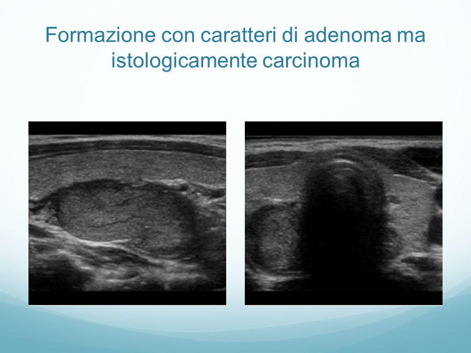 Formazione con caratteri di adenoma ma istologicamente carcinoma