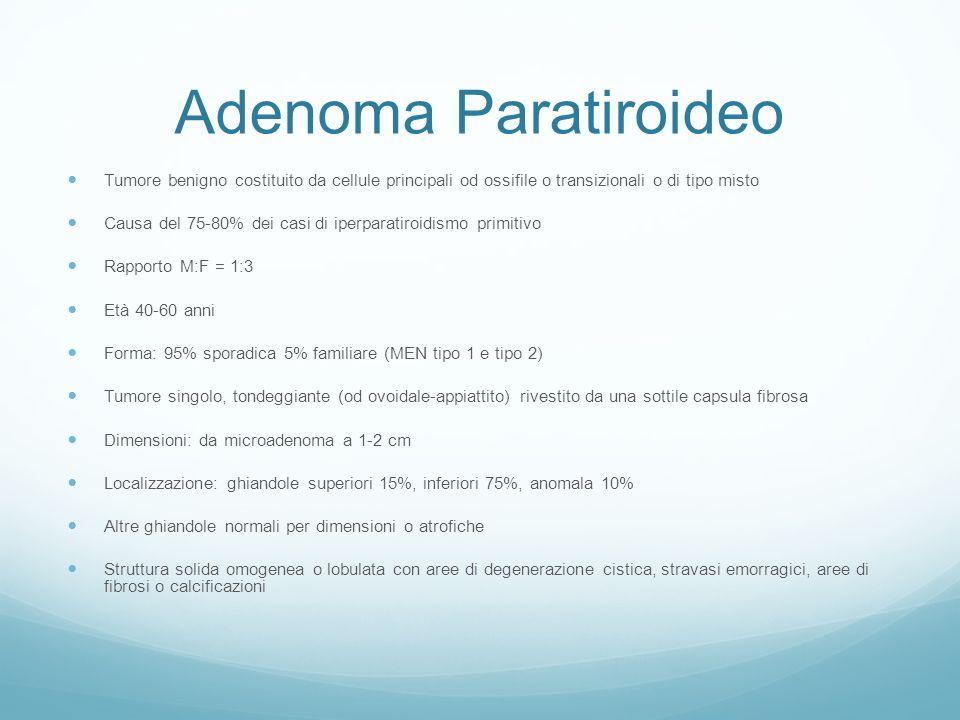 Adenoma Paratiroideo Tumore benigno costituito da cellule principali od ossifile o transizionali o di tipo misto.