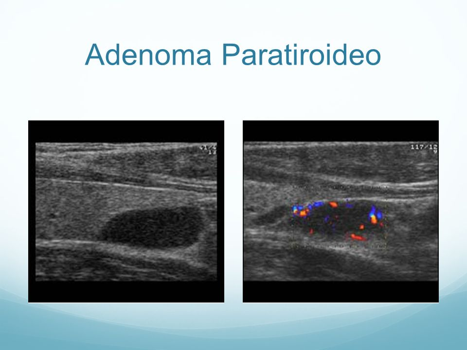 Adenoma Paratiroideo