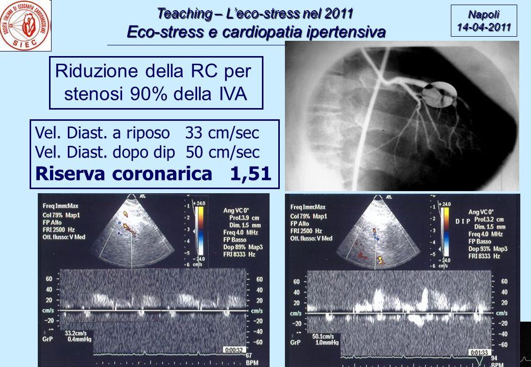 Riduzione della RC per stenosi 90% della IVA Riserva coronarica 1,51