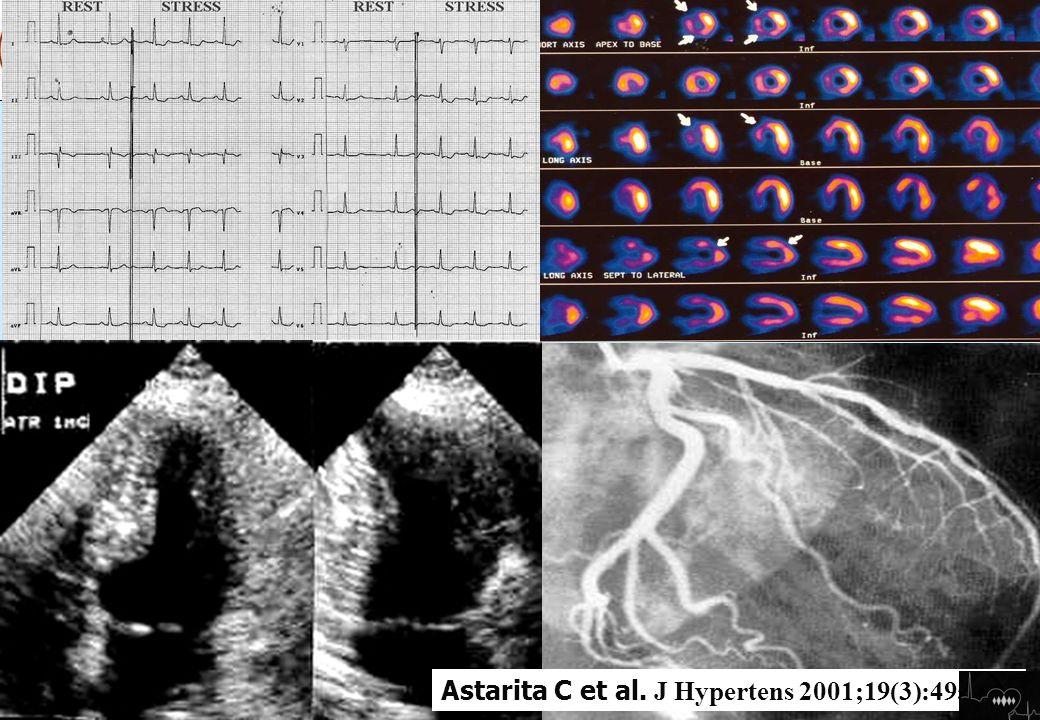 nella angina microvascolare