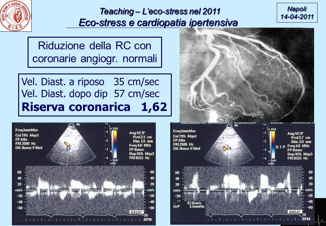 Riserva coronarica 1,62 Riduzione della RC con