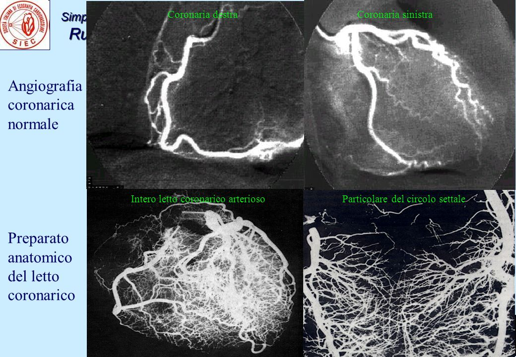 Angiografia coronarica normale Preparato anatomico del letto