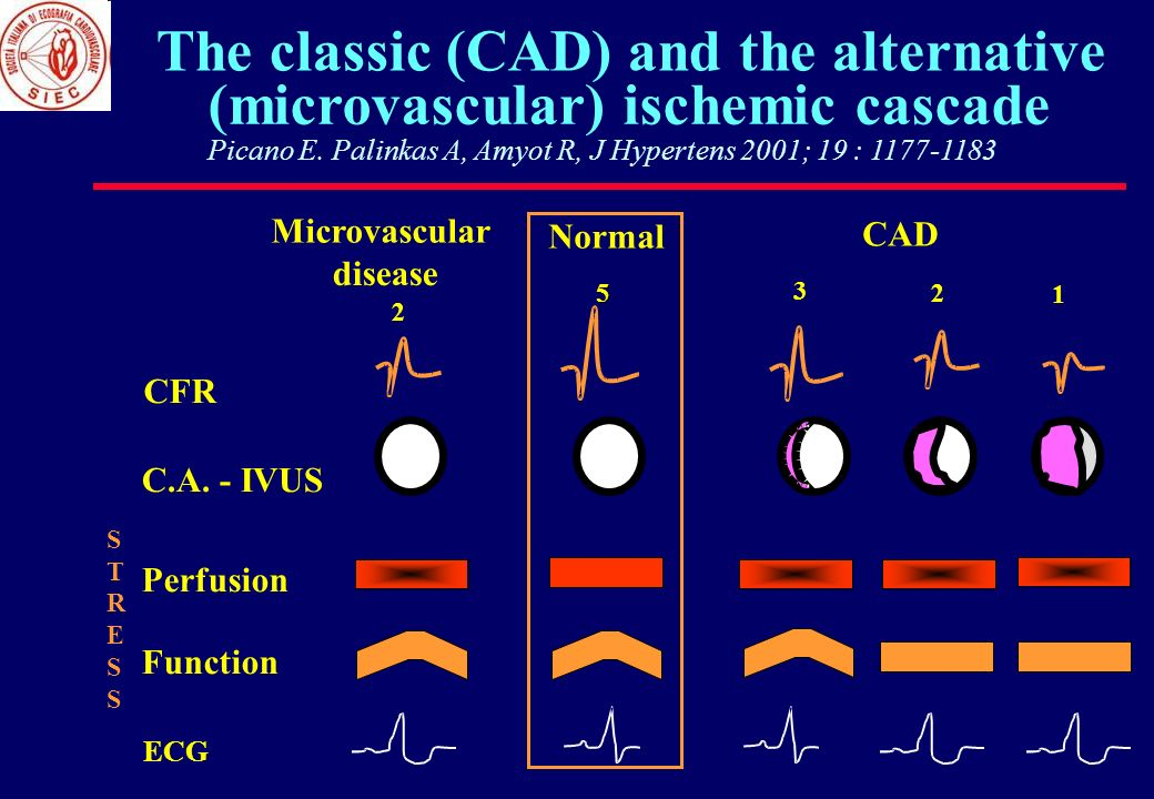 The classic (CAD) and the alternative (microvascular) ischemic cascade