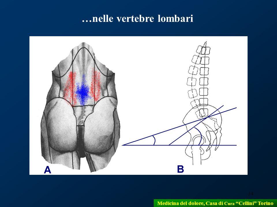 …nelle vertebre lombari
