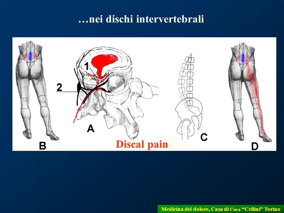 …nei dischi intervertebrali Discal pain