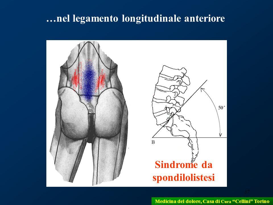 …nel legamento longitudinale anteriore Sindrome da spondilolistesi