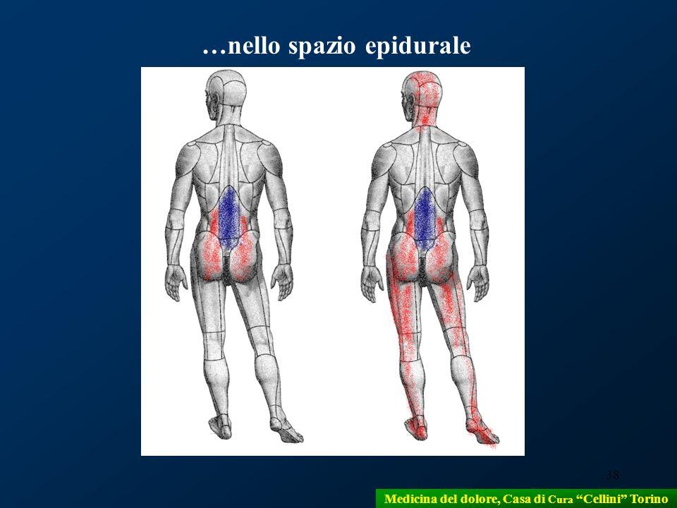 …nello spazio epidurale