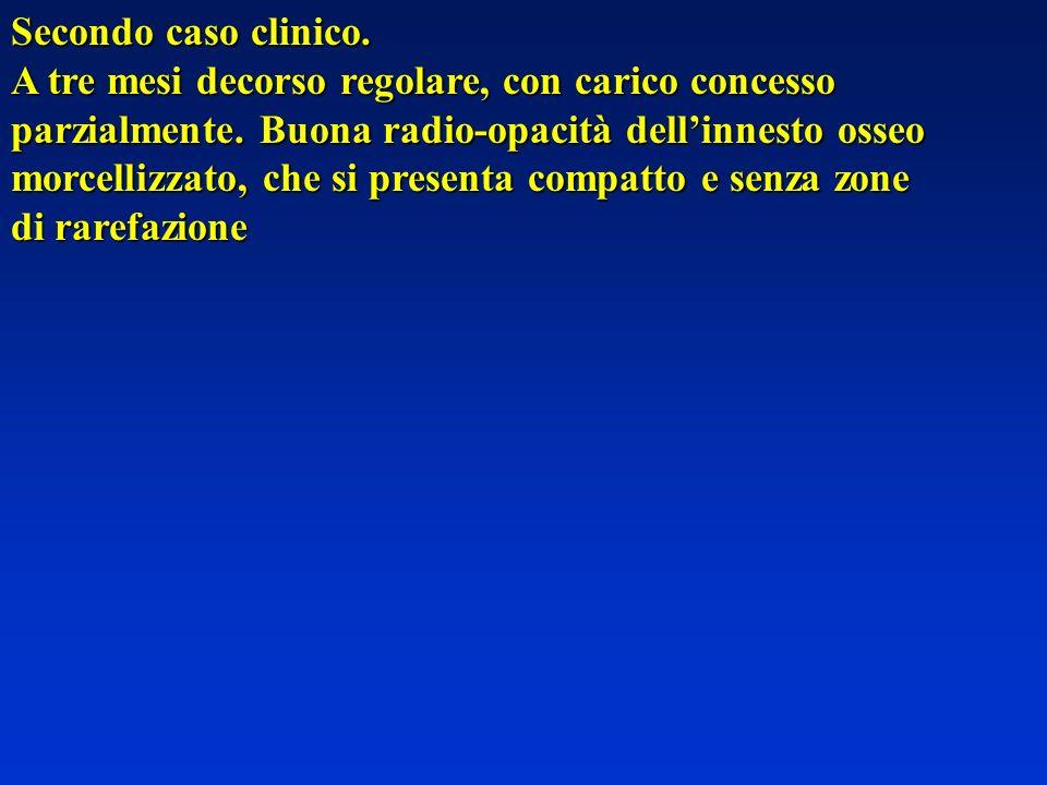 Secondo caso clinico. A tre mesi decorso regolare, con carico concesso. parzialmente. Buona radio-opacità dell'innesto osseo.