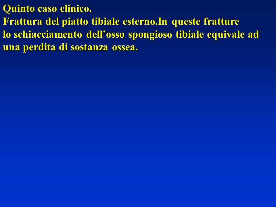 Quinto caso clinico. Frattura del piatto tibiale esterno.In queste fratture. lo schiacciamento dell'osso spongioso tibiale equivale ad.